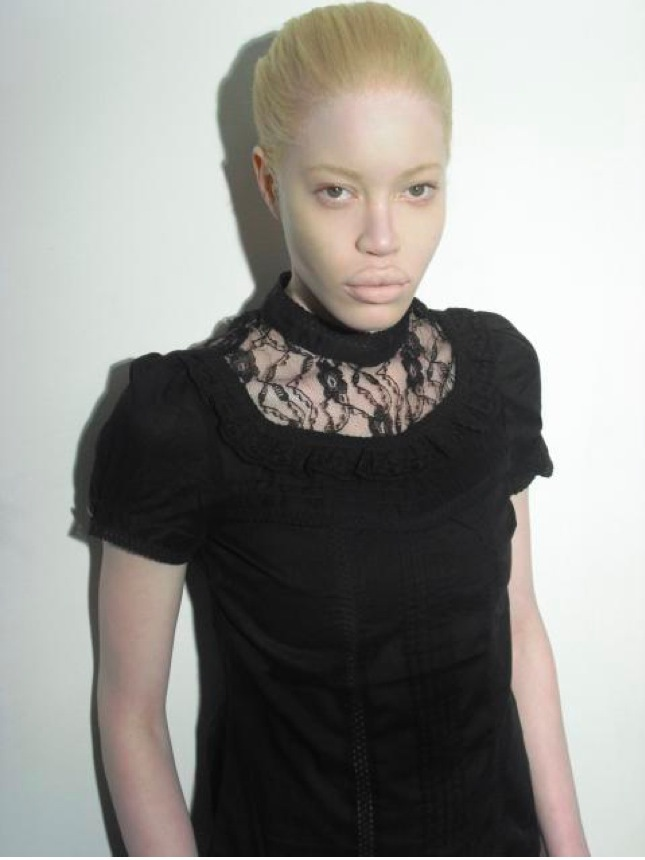 Albino Black Woman