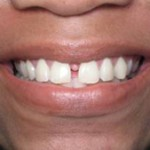 gapped_teeth_before-150x150